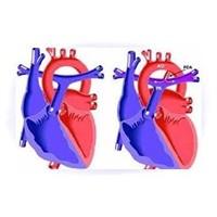 Kalbi delik hastalara ameliyatsız müdahale