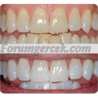 Dişlerinizi Pratik Ve Etkili Yöntemle Beyazlatın