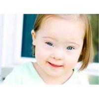 Bebeklerde Down Sendromu
