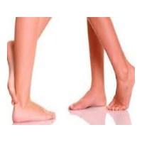 Bacak Şişmesi