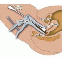 Rahim Ağzı Kanseri Ve Smear Testi