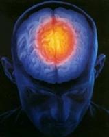 Migren Nedir Migren Bandı