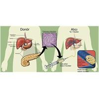 Kök Hücre İle Tip-1 Diyabete Kesin Çözüm?