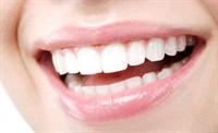 Diş Bakımında Beyazlatmada Doğru Bilinen Yanlışlar