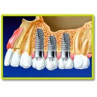 Dental İmplantlar Diş Ekimi