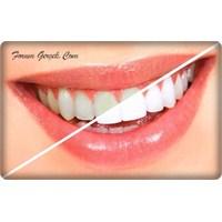 Dişlerde Renk Değişimi | Tedavisi