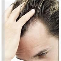 Saçlarımız Neden Dökülür Çözüm