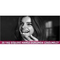 20 Yaş Dişleri Hangi Durumlarda Çekilmeli?