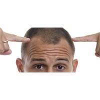 Saç Ekimi'nde İkinci Seans Önemli