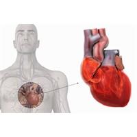 Soya Kalp Kası Hastalığı Yapıyor !
