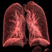 Akciğer Kistlerine Nerede Rastlanır ?