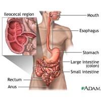 Crohn Hastalığı Nedir Nasıl Tedavi Edilir