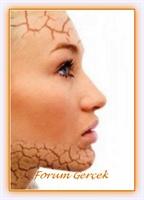Cildiniz Çok Mu Kuru? Evdeki Malzemelerle Maskeler