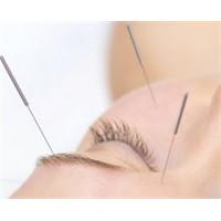 Yaşlılığa Engel Olacak Yüz Akupunkturu