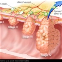 Bağırsak Kanseri Nedir Ve Nasıl Tedavi Edilir ?