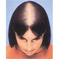 Saç Dökülmesine Yüzde Yüz Son