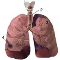 Akciğer Apseleri