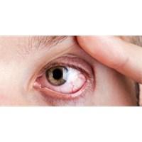 Göz Nezlesi (Konjonktivit) Nedir?