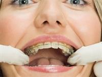 Beyaz Dişlerin Sırları!