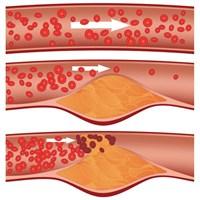 Ateroskleroz Nedir