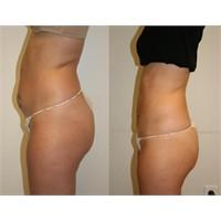 Liposuction İle Zayıflanır Mı?