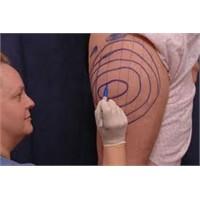 Liposuction, Kalp Krizi Riskini Azaltıyor