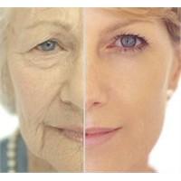 Yüz Germe Estetik Ameliyatı İle Gençleşmek