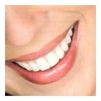 Güzel Gülüşler Zor Değil!