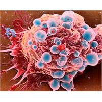 Kolon Kanseri Nedir?