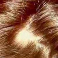 Saçkıran Tedavisi Nasıl Yapılır ?