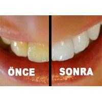 Photoshop'ta Diş Beyazlatma