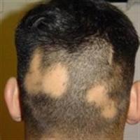 Saçkıran Hastalığı Tedavisi Burada