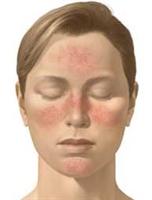 Rozase - Gülleme Hastalığı