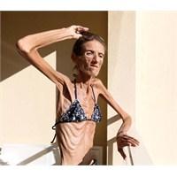 Valeria Levitina Kimdir? Resimleri-hastalığı
