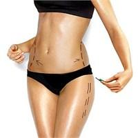 Liposuction Nedir, Yan Etkileri Nelerdir?