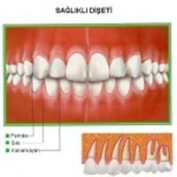 Diş İltihaplanmaları Cinsel Performansa Etki Ediyo