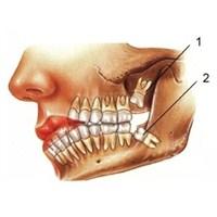 Gömülü Diş Ne Demek?