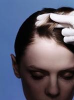 Kepek Ve Saç Diplerindeki Yaralar İçin Doğal Formü