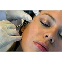 Botox Hakkında Merak Ettikleriniz