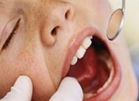 Diş Bakımıyla İlgili Doğru Bildiğimiz Yanlışlar