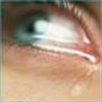 Gözünüzdeki Çapaklanma Nasıl Önlenir