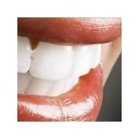 Diş Eti Kanamaları Ve Diş Eti İltihabına Bitkisel