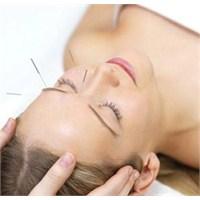 Akupunktur İle 10 Yaş Gençleşmek İster Misiniz?