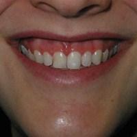 Gummy Smile'ın Bir Çözümü Var
