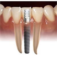 Diş İmplantı Nedir ?