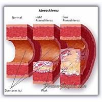 İyi Huylu - Kötü Huylu Kolesterol Ne Demektir?