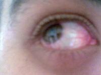 Yorgun Ve Şişkin Gözlere Çözüm