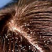 Saç Derisinde Kuruluk Ve Kepeklenme