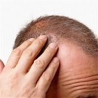 Saç Dökülmesini Önleme