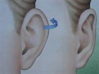 Kepçe Kulak Nedir ?